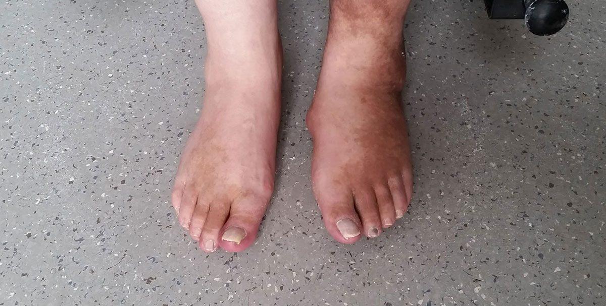 Charcot-Fuß