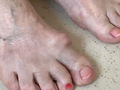 Sichtbarer Osteophyt dorsal am Großzehengrundgelenk. Die Reibung am Schuh bereitet dem Patienten Schmerzen.