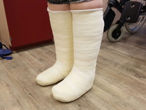 Charcot-Füße in TCC ruhiggestellt