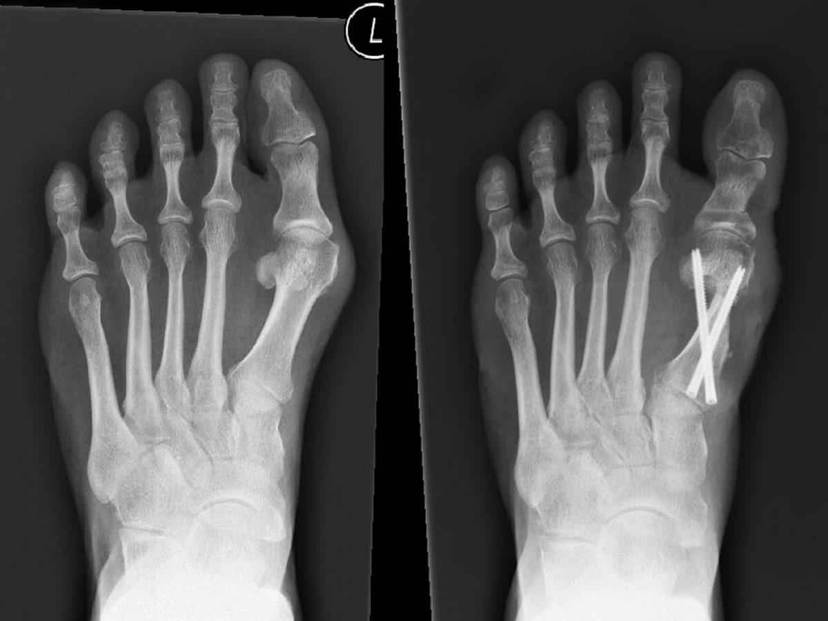 Minimalinvasive Chevron-/Akin-Osteotomie (MICA)