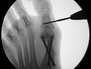 Minimalinvasive Akin-Osteotomie