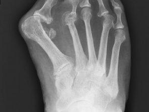 Röntgenbild Hallux valgus