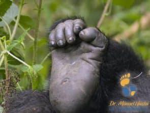 Vergleich Primatenfuß zum menschlichen Fuß mit Hallux valgus