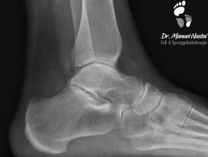 Seitliche Röntgenaufnahme eines normalen Sprunggelenk