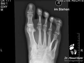 Röntgen-Aufnahme bei Poly-Syndaktylie