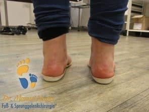 Schuheinlagen bei Plattfuß