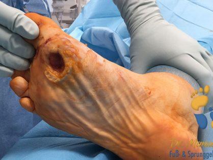 Malum perforans (Fußgeschwür)