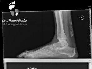 Verkalkungen in der Achillessehne