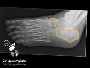 Röntgen Fuß schräg Normalbefund