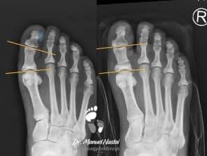 ergebnis nach Akin-Osteotomie und Exostosenabtragung