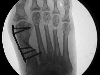 Distale Metaphysäre Metatarsale Osteotomie (DMMO)