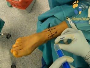 OSG Arthroskopie