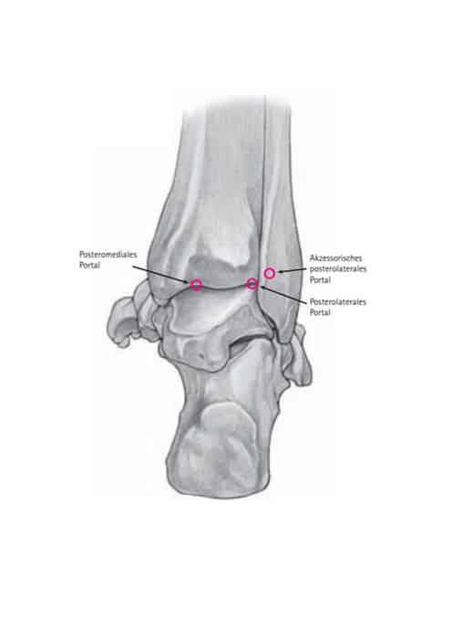 Hintere Portale OSG Arthroskopie