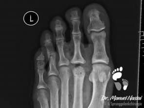 Röntgen-Ergebnis nach der Köpfchenumstellung des Metatarsale II