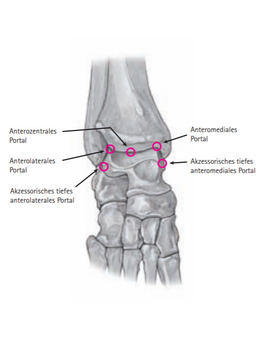 Vordere Portale OSG Arthroskopie