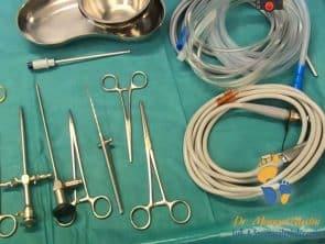 Instrumente für Sprunggelenksarthroskopie