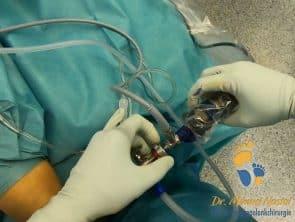 Einführung der Kamera bei der Sprunggelenk-Arthroskopie