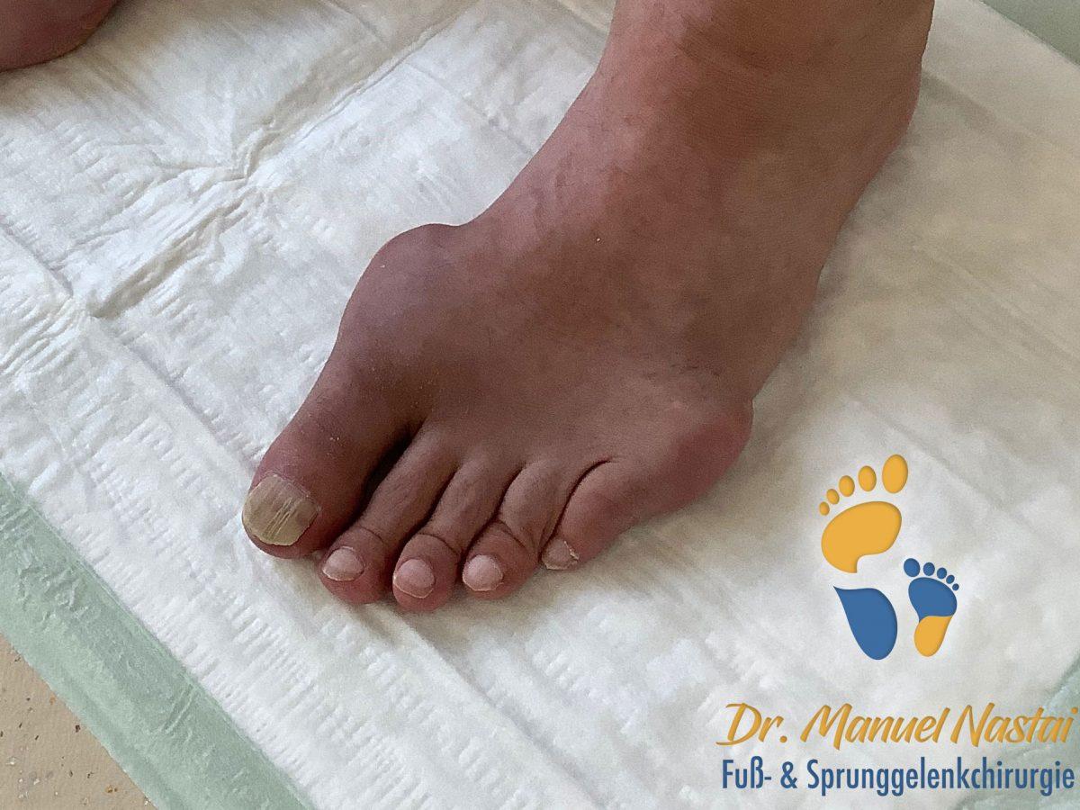 Gicht (Arthritis urica)