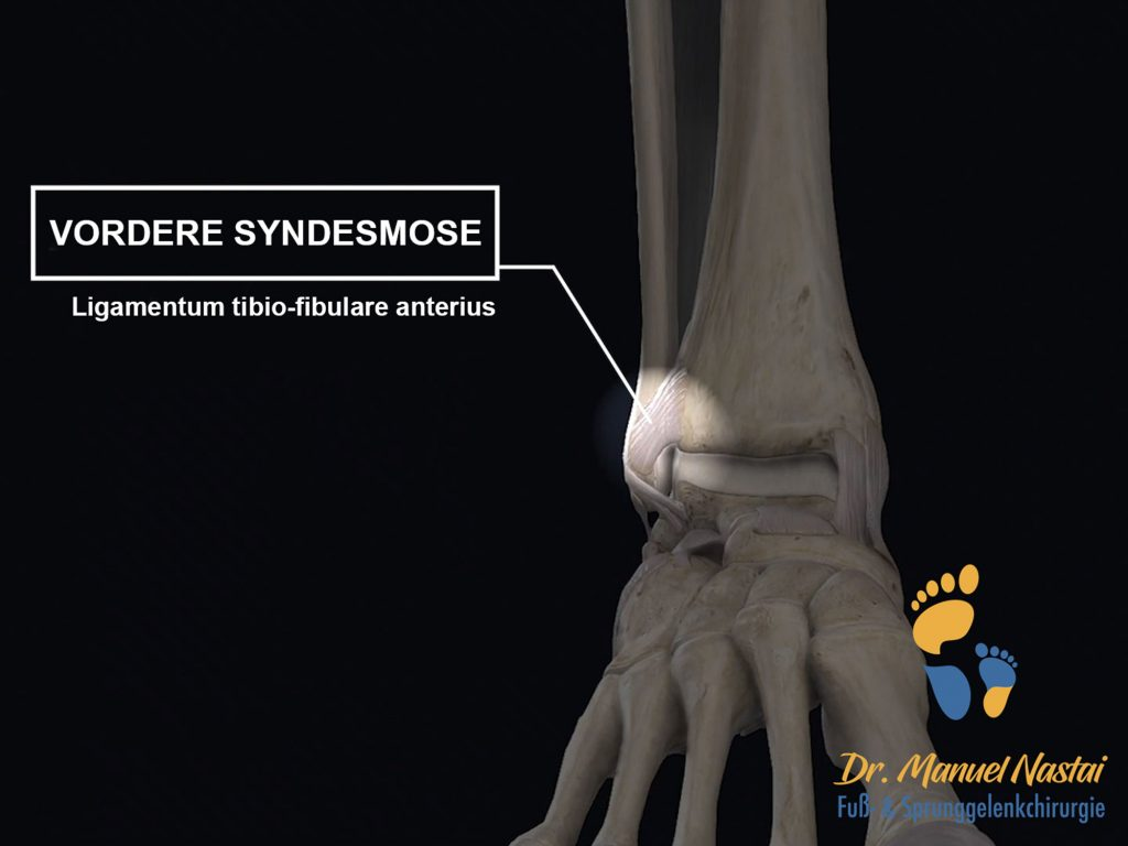 Vordere Syndesmose