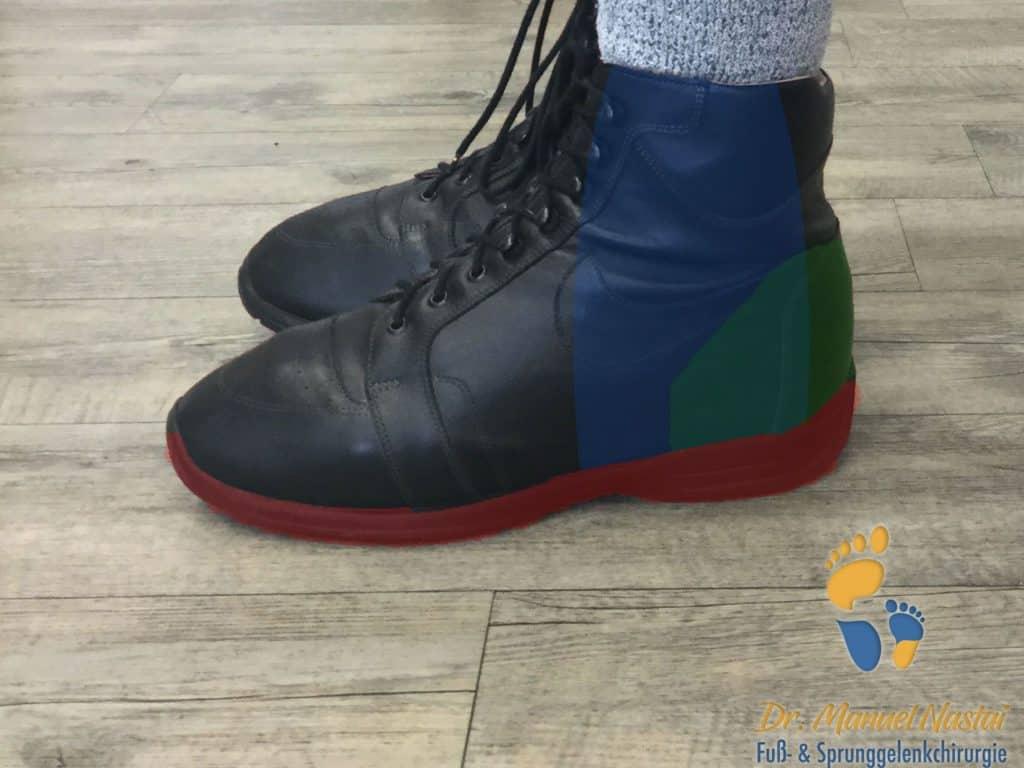 Orthopädischer Schuh mit den eingebauten Elementen