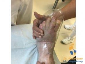 Probe eines orthopädischen Schuhes