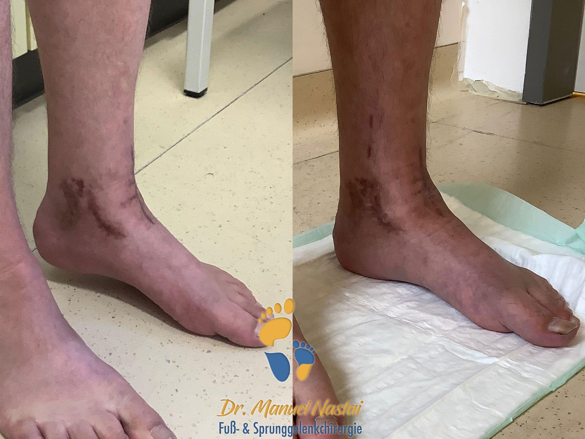 Ergebnis nach Korrekturarthrodese des Sprunggelenkes