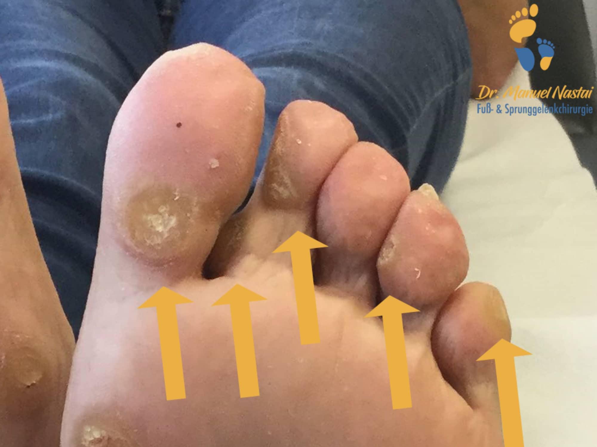 Fingernagel warze entfernen unterm Warze unterm