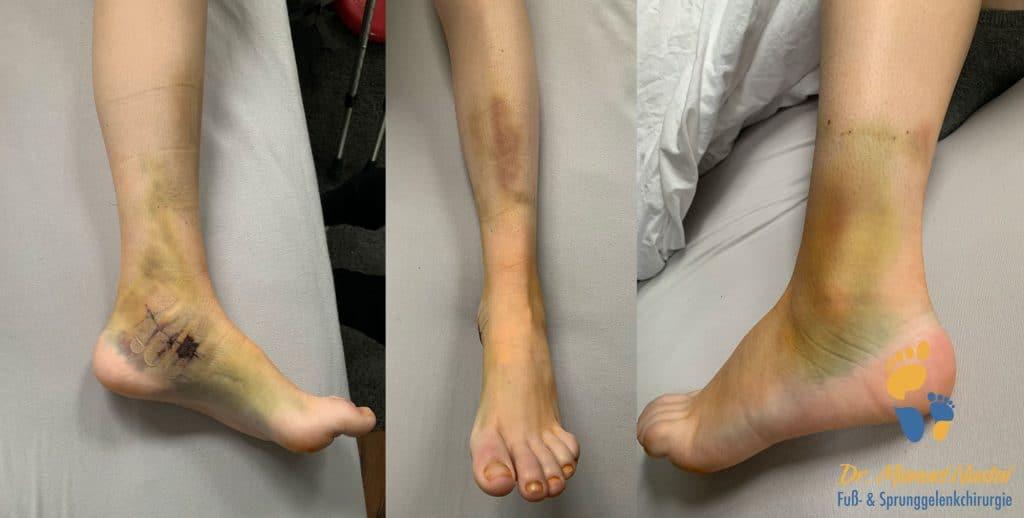 Postopratives Hämatom nach einer Fuß-Op