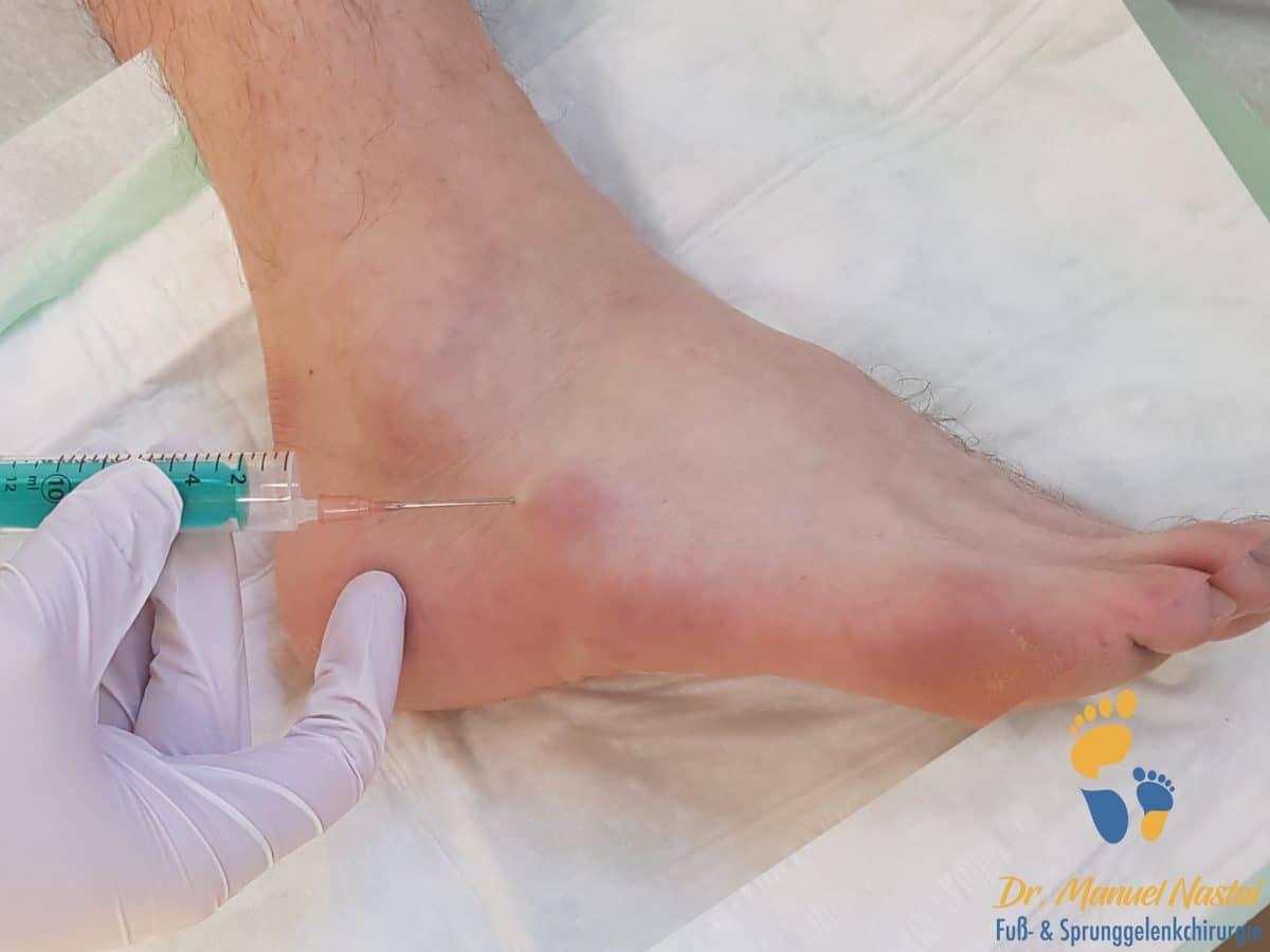 Eigenbluttherapie am Fuß (PRP, Plättchen-reiches Plasma)