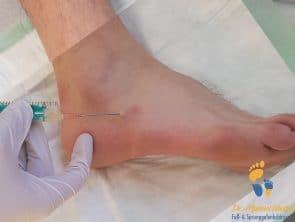 Abpunktiertes Überbein (Ganglion) am Fuß
