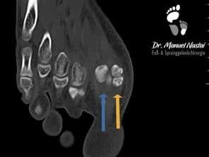 CT mit Sesambeinfraktur