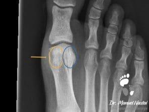 Röntgen-Aufnahme Sesambein-Fraktur